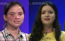 Cô gái bị chàm xinh đẹp bất ngờ tại Change Life - Thay đổi cuộc sống