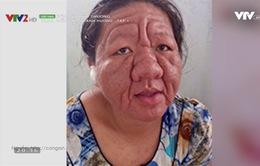 Hỏng da và những hệ lụy không ngờ vì dùng mỹ phẩm chứa corticoid