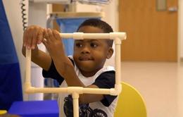 Ca cấy ghép tay trẻ em thành công đầu tiên trên thế giới