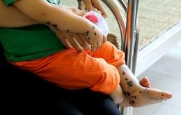 Cách chăm sóc và dinh dưỡng cho trẻ mắc tay chân miệng