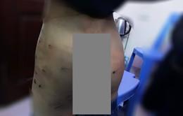 Lại thêm bé 9 tuổi ở Hà Nội bị bố đẻ bạo hành thâm tím người