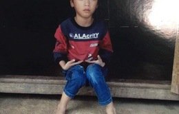Trái tim cho em: Bé trai 6 tuổi hồi phục tốt sau ca phẫu thuật tim