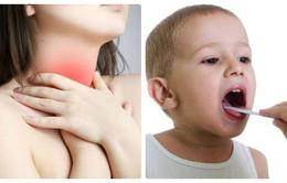 Dấu hiệu nhận biết viêm amidan ở người lớn và trẻ nhỏ