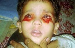 Ấn Độ: Cô bé thường xuyên khóc ra máu khiến y học bó tay
