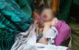 Ấn Độ: Bé gái sơ sinh có tim ngoài lồng ngực