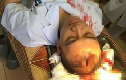 Sở Y tế Hà Nội vào cuộc vụ bác sỹ bị người nhà bệnh nhân đánh vào đầu bất tỉnh