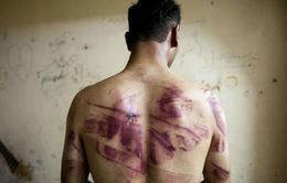 Lần đầu tiên Việt Nam có báo cáo quốc gia về chống tra tấn