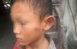 Điều tra nguyên nhân cháu bé bị bạo hành ở Quảng Ngãi