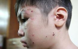 Đề nghị khởi tố vụ bé trai 10 tuổi bị bạo hành