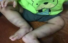 Khởi tố vụ án bạo hành bé trai 1 tuổi ở Hà Nội