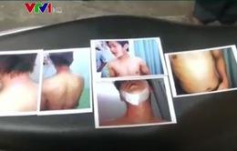 Bạo hành sinh viên tại Ấn Độ