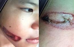 Chưa đến 1 tuần diễn ra 5 vụ bạo hành và sát hại trẻ nhỏ