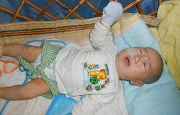 Xót xa bé 3 tháng tuổi phải dùng ống xông sữa để duy trì sự sống