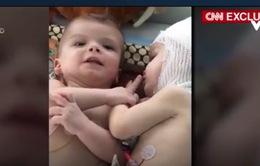 """Mẹ của cặp song sinh bị dính liền đầu tại Mỹ: """"Chúng xinh đẹp và hài hước nữa"""""""