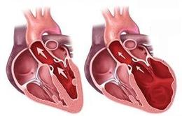 Bệnh lý cơ giãn tim có tỷ lệ tử vong cao