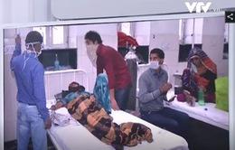 Ấn Độ: Hơn 1.000 ca tử vong do cúm lợn