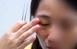 Một phụ nữ phải cắt bỏ mô tuyến vú do biến chứng sau tiêm silicon