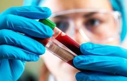 Nhóm máu nào có nguy cơ cao mắc bệnh nhồi máu cơ tim?