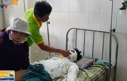 Sự cố phóng điện tại đường dây trung áp 22kV: Một học sinh bị bỏng nặng