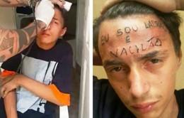 Brazil: Bị xăm lên trán vì ăn trộm