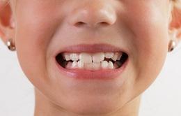 Tật nghiến răng khi ngủ ảnh hưởng sức khỏe như thế nào?