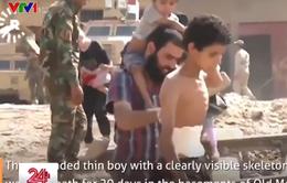 Cậu bé bị thương chạy trốn IS ở Mosul trong hơn 20 ngày
