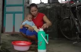 Tìm lại sự sống cho em bé bị bệnh tim bẩm sinh