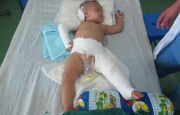 Cứu sống bé 15 tháng tuổi bị rơi từ tầng 5