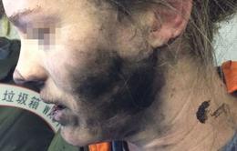 Pin tai nghe phát nổ trên máy bay đến Australia