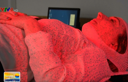 Công nghệ quét 3D giúp xạ trị ung thư vú tại Anh