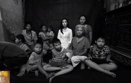 Bộ ảnh đầy day dứt về nạn nhân da cam thế hệ thứ ba