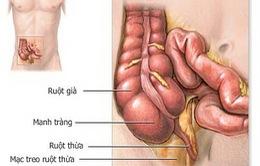 Bệnh viêm đại tràng co thắt dễ tái phát