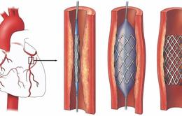 Giải pháp mới cho bệnh nhân mạch vành