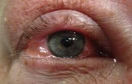Dịch đau mắt đỏ đến sớm