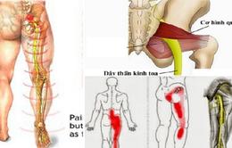 Các biện pháp chữa đau lưng, đau thần kinh tọa do thoát vị đĩa đệm