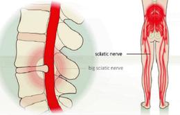 Phát hiện sớm và điều trị bệnh đau lưng, đau thần kinh tọa