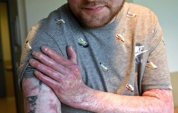 Cứu sống bệnh nhân người Pháp bị bỏng 95% cơ thể
