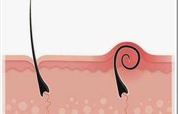 Thoát tình trạng lông mọc ngược chỉ trong một nốt nhạc với những mẹo sau đây