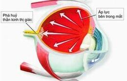 Dấu hiệu nhận biết và phương pháp điều trị bệnh glocom
