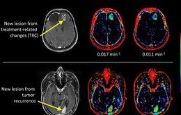 Tìm ra phương pháp mới chữa u não không cần phẫu thuật
