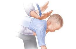 Hướng dẫn cách sơ cứu khi trẻ bị hóc dị vật