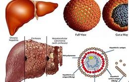 Viêm gan C - Căn bệnh thầm lặng để lại hậu quả nặng nề