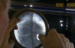 Tranh cãi quanh việc phương pháp chụp X-quang chẩn đoán ung thư vú