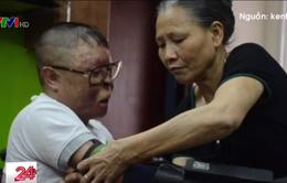 Chiến sĩ sống sót trong vụ máy bay rơi ở Hoà Lạc được lắp cánh tay giả