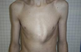 Sáng kiến mới chữa bệnh ngực lồi không cần phẫu thuật