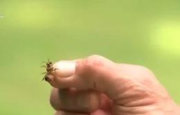Bị ong đốt, người phụ nữ 61 tuổi nhồi máu cơ tim cấp