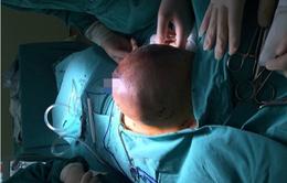 Phẫu thuật thành công ca mổ loại bỏ khối u tuyến vú khổng lồ