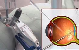 Ứng dụng robot phẫu thuật phát triển mạnh mẽ