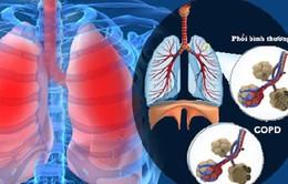Những bệnh lý nguy hại về phổi
