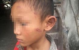 Bé 5 tuổi bị dì ruột bạo hành dã man thời gian dài